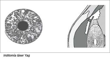 Iriditomia laser Yag