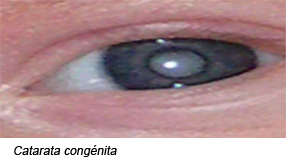 Catarata Congénita