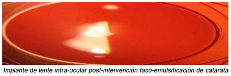 Implante catarata