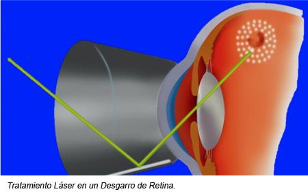 Laser en Retina